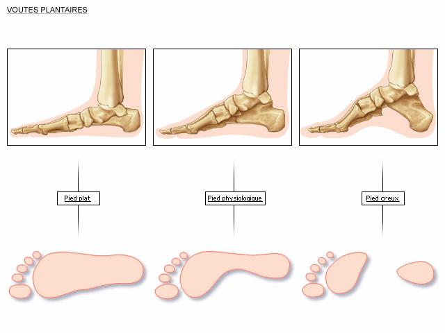 autres pathologies du pied chirurgie pied. Black Bedroom Furniture Sets. Home Design Ideas