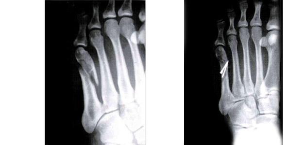 fracture 5ème métatarse pied