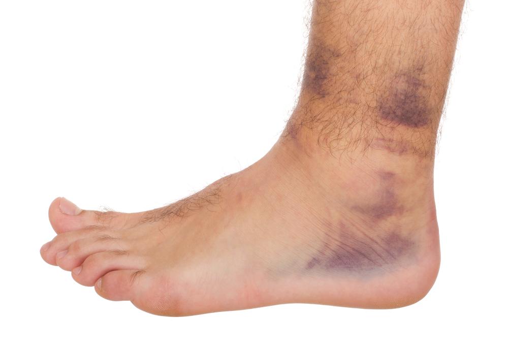 couleur n brillante nouveaux prix plus bas nouveau concept Les entorses de la cheville - Clinique du pied